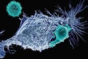 """Một bộ công cụ gen biến tế bào thường thành tế bào """"cảm tử"""" lao vào khối u ung thư"""